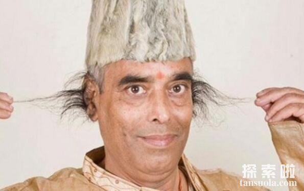 世界上最长的耳毛,印度男子巴加帕的耳毛,比头发都长(图1)