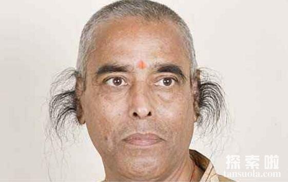 世界上最长的耳毛,印度男子巴加帕的耳毛,比头发都长(图3)