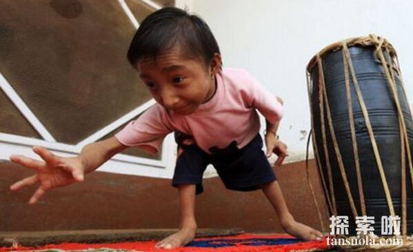 世界上体重最轻的人:露西亚·沙拉特,体重仅5.9公斤(图3)