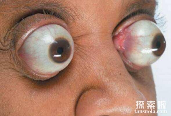世界上最长的眼球,突出眼眶外11毫米(外星人的即视感)