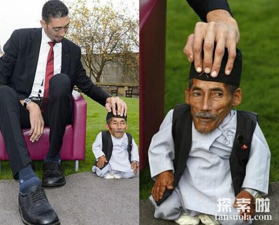 世界上最矮的男人:身高只有0.546米