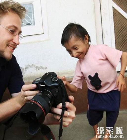 中国最矮的人:何平平,身高仅74.6厘米,体重7公斤(图2)