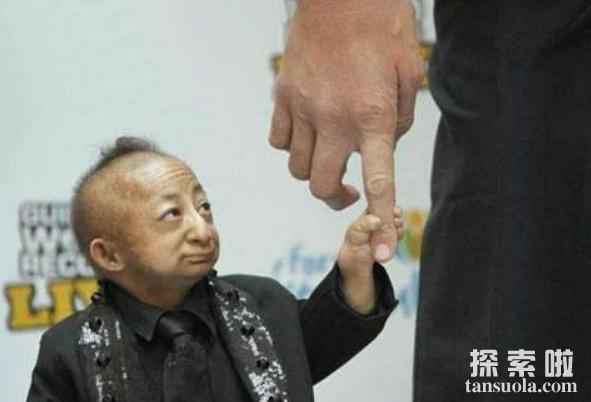 中国最矮的人:何平平,身高仅74.6厘米,体重7公斤(图6)