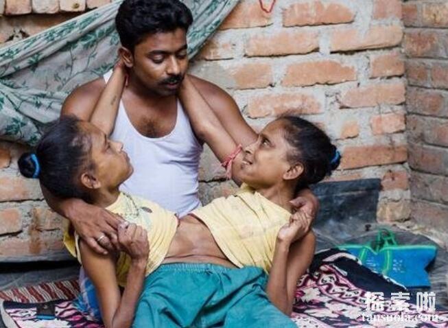 """罕见的印度连体""""蜘蛛女"""",二人有三条腿一副生殖器"""