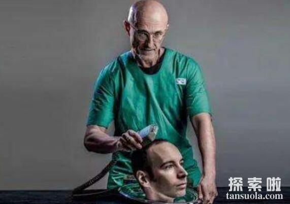 换头手术是怎样的,解密换头术的成败(成功唤醒猴子)