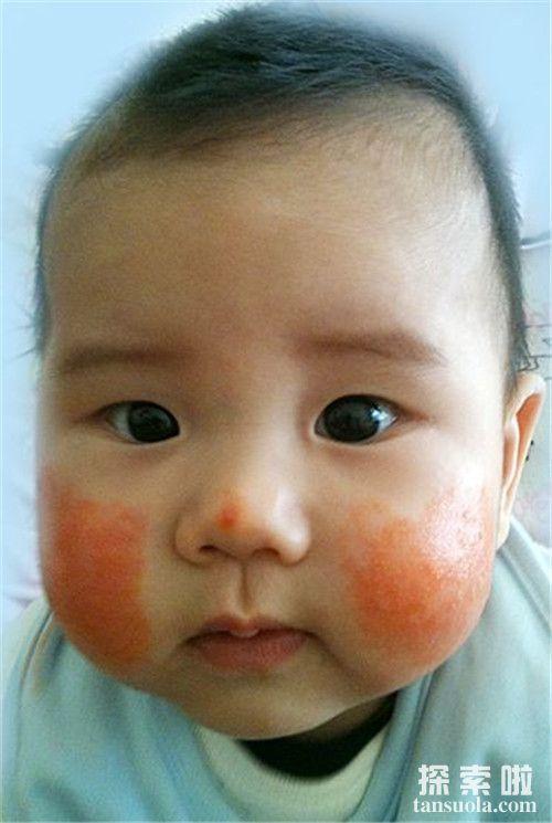 【春季宝宝容易得哪些过敏性发痒皮肤病】春季宝宝脸蛋红扑扑可能是皮肤