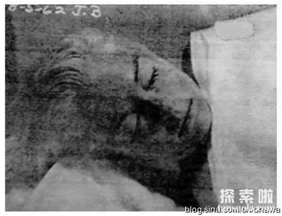 【玛丽莲梦露没牙齿原因是什么】玛丽莲梦露死亡真相是自杀还是他杀?